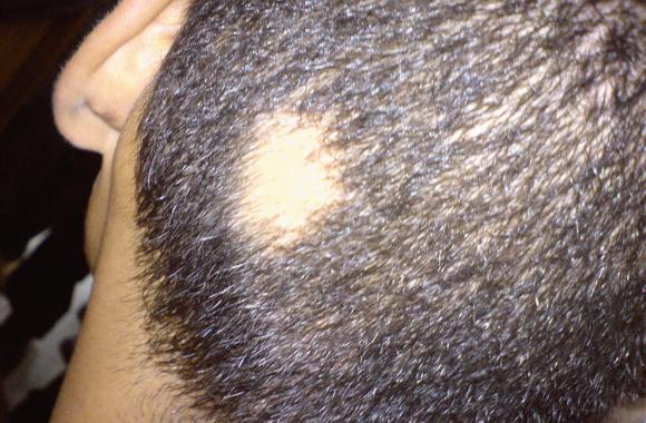 wypadanie włosów po odżywce