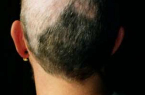 ampułki na porost włosów vichy dla mężczyzn